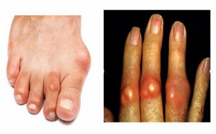 Bệnh Gout là bệnh viêm khớp do vi tinh thể