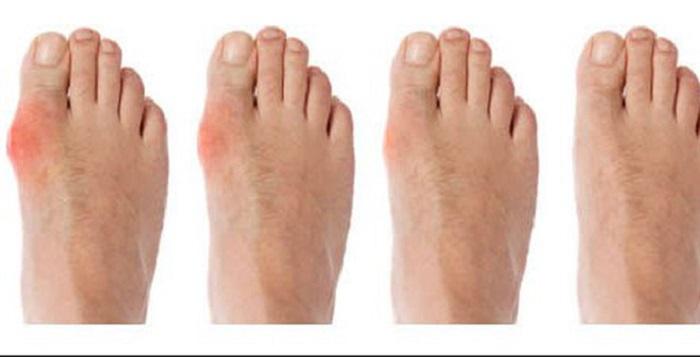 Triệu chứng báo hiệu nguy cơ bị gout