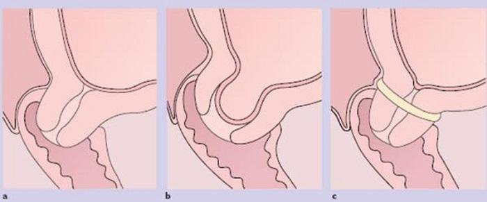 Khâu vòng cổ tử cung