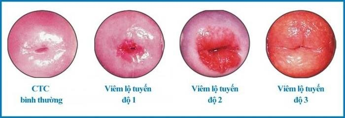 Có thể tiến triển thành ung thư dưới tác động của các yếu tố sinh ung thư nếu không được điều trị.
