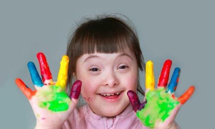 Trẻ em bị hội chứng Down có một số đặc điểm chung về thể chất