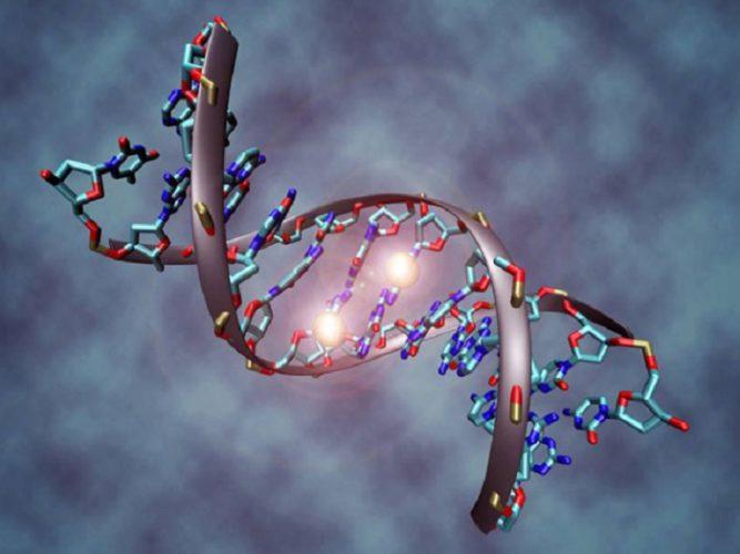 Bé bị hội chứng Down do mất cân bằng trong bộ gen, cụ thể là thừa một nhiễm sắc thể số 21
