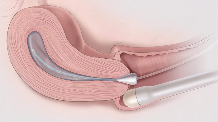 Đo chiều dài cổ tử cung qua siêu âm ngả âm đạo