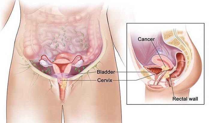 Giai đoạn muộn hơn của chứng loạn sản cổ tử cung