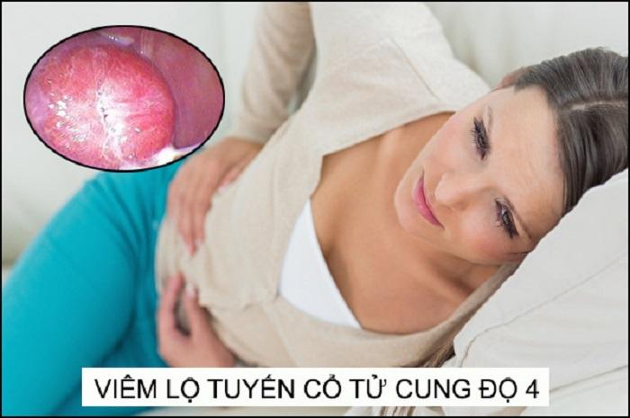 Cần phòng ngừa bệnh viêm lộ tuyến tử cung